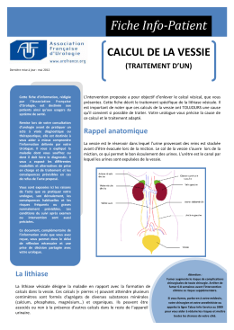 Calcul de la vessie