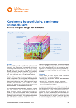 Carcinome basocellulaire, carcinome spinocellulaire