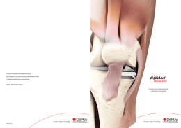 Sigma Partial Knee Uni ST FR 1.2 (1)
