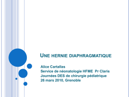 hernie diaphragmatique
