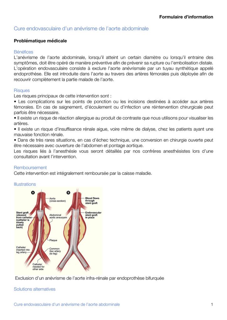Cure endovasculaire d`un anévrisme de l`aorte abdominale