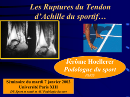 Les Ruptures du Tendon d`Achille
