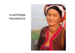 la pathologie thyroidiennex