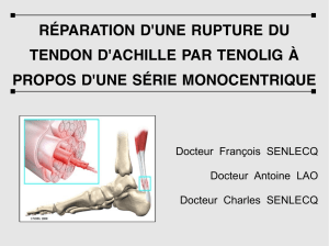 expose_tendon_d_achille_TENDON D`ACHILLE