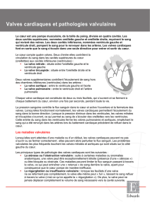 Fact sheet (français) - Pathologies valvulaires
