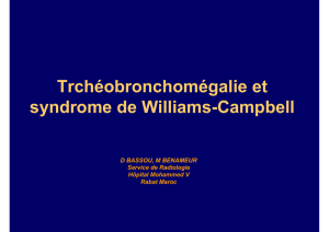 Trchéobronchomégalie et syndrome de Williams