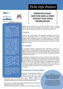 injections de toxine botulique A