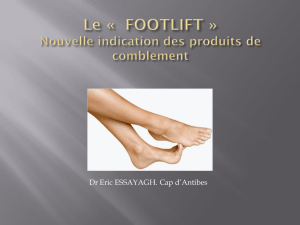FOOTLIFT - Amiform
