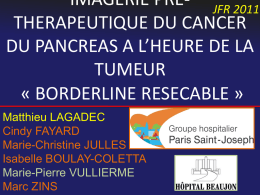 imagerie pre-therapeutique du cancer du pancreas a l`heure