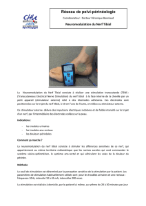 Neuromodulation Nerf tibial
