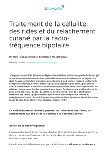 fréquence bipolaire