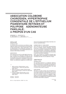 association colobome choroïdien, hypertrophie