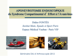 APONEVROTOMIE ENDOSCOPIQUE du Syndrome