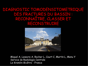 diagnostic tomodensitometrique des fractures du bassin