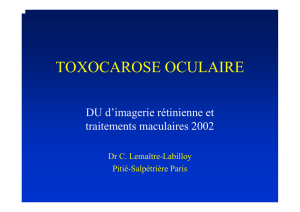 TOXOCAROSE OCULAIRE