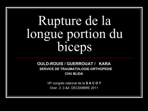 Rupture de la longue portion du biceps