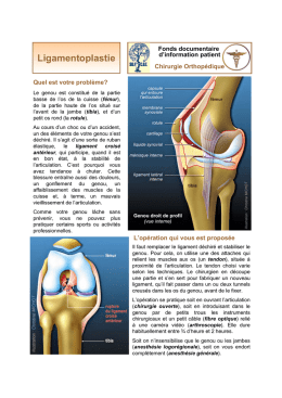 Ligamentoplastie - Groupe Chirurgical Thiers