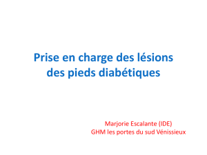 Prise en charge du Mal perforant plantaire