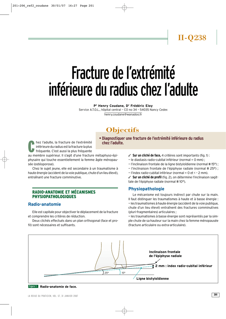 2019 professionnel performance fiable sensation de confort Fracture de l`extrémité inférieure du radius chez l`adulte