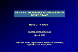 reanimation du brule a la phase aigue