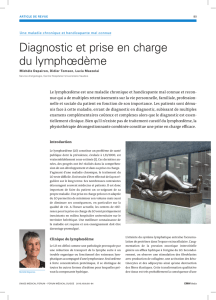 Diagnostic et prise en charge du lymphœdème
