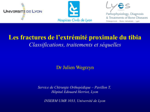 diu genou 2016 – fractures extremite superieure tibia – wegrzyn