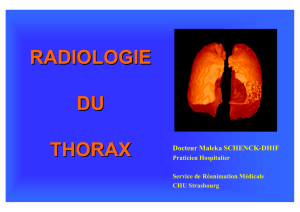 EXPLORATION RADIOLOGIQUE DU THORAX