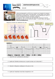 electrocardiogramme - Jf