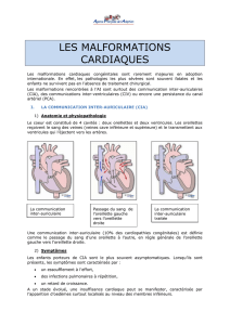 Malformations cardiaques - agence