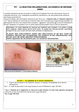tp 13 la reaction inflammatoire , un exemple de reponse innee