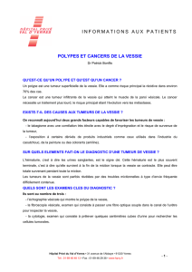 informations aux patients polypes et cancers de la vessie