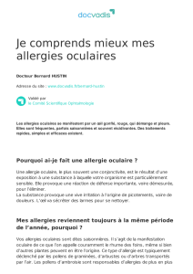Je comprends mieux mes allergies oculaires