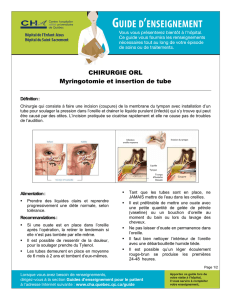 Myringotomie et insertion de tube VF