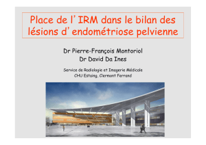 IRM endométriose Da Ines