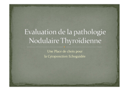 clinique de la pathologie nodulaire thyroidienne