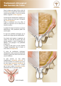 Traitement chirurgical des hernies de l`aine