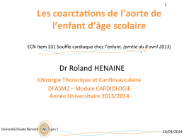 Coarctation de l`aorte