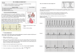 AE7 electrocardiogramme