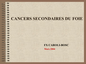 cancers secondaires du foie