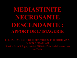 mediastinite necrosante descendante