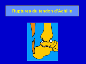 Ruptures du tendon d`Achille