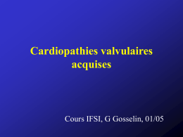 Cardiopathies valvulaires acquises 1