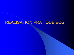 realisation-ratique-ecg