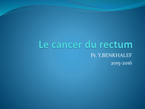 Le cancer du rectum