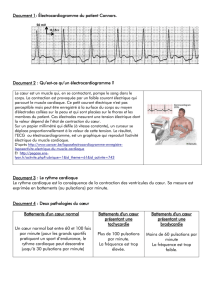 Document 1: Électrocardiogramme du patient Connors. Document 2