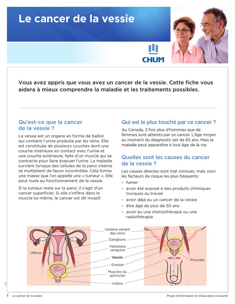 les causes de la maladie prostate