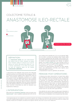 Colectomie totale et Anastomose iléo-rectale
