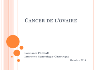 Cancer de l`ovaire