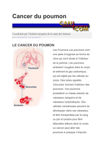 Cancer du poumon - European Institute of Women`s Health