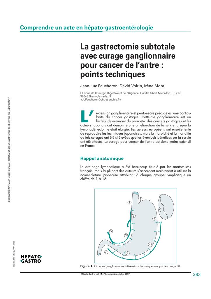 La gastrectomie subtotale avec curage ganglionnaire pour cancer